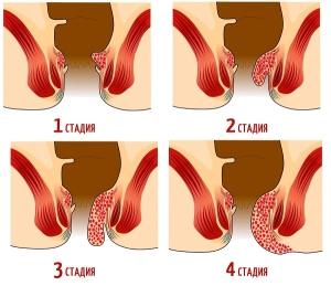 Геморрой лечение лазером в запорожье thumbnail